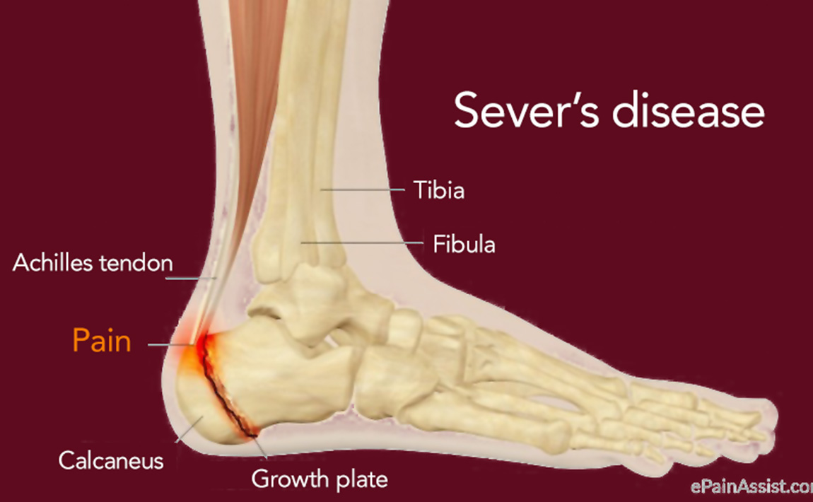 Gymnastics injury prevention - Sever's disease
